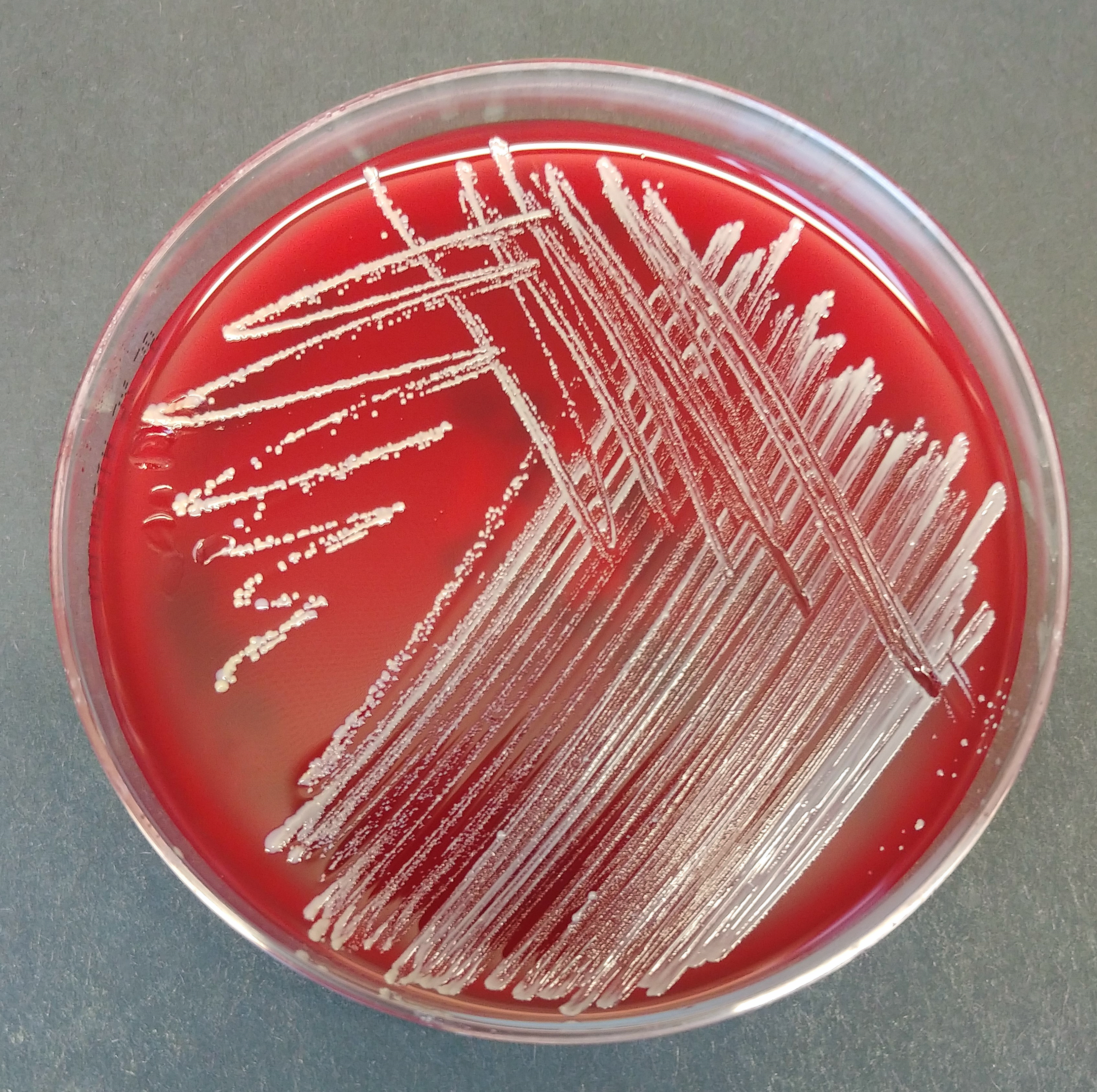 20210616_Staph_plate1.png